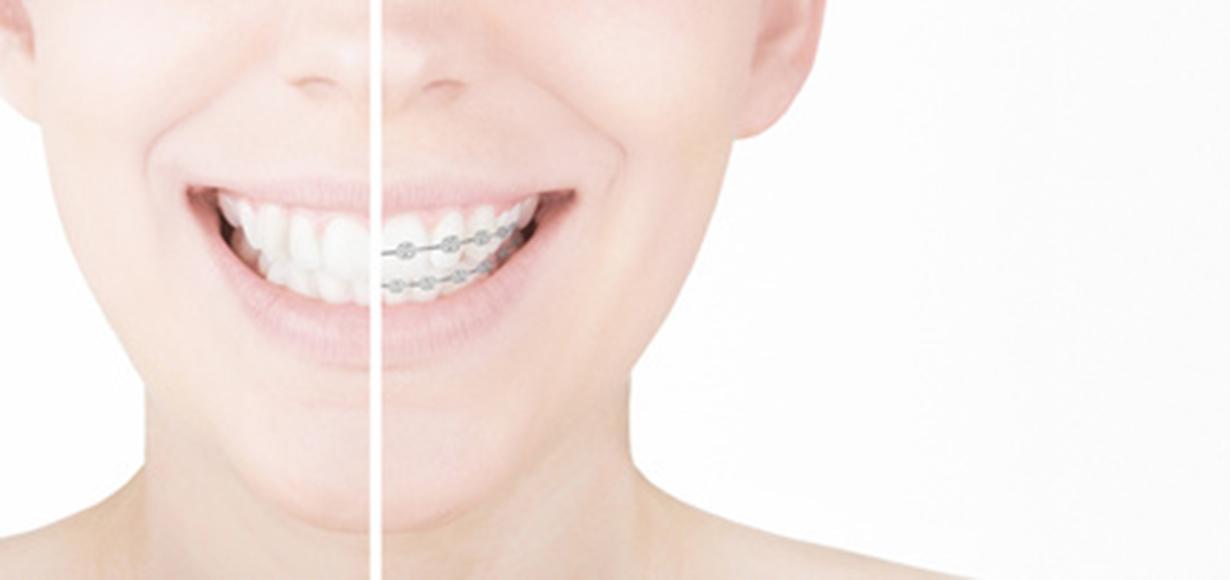 denti storti-0