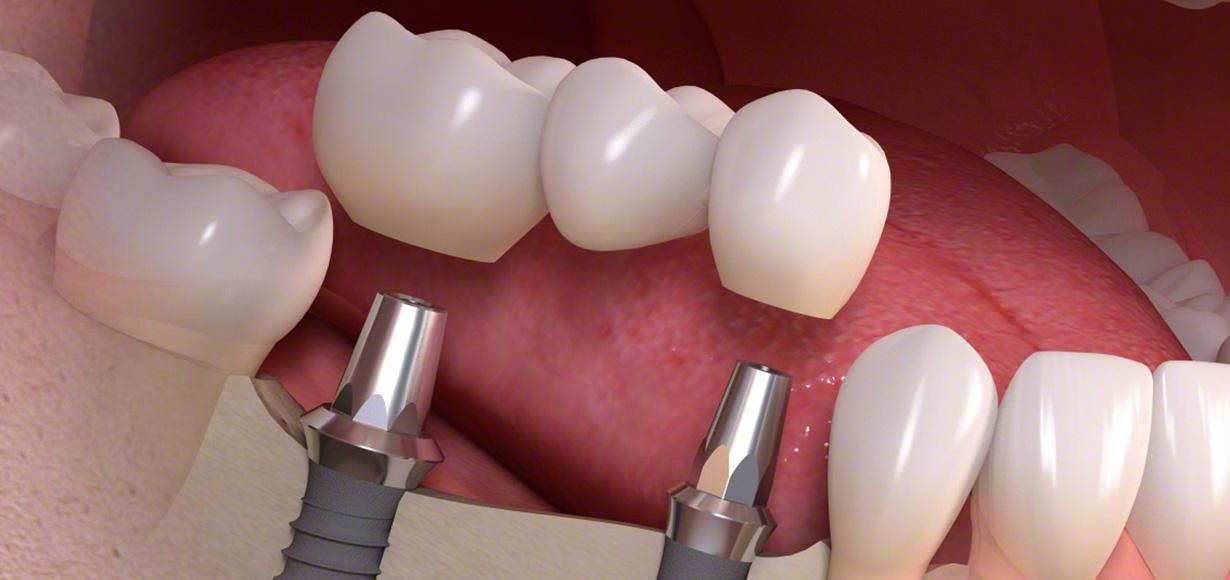 protesi dentale-0