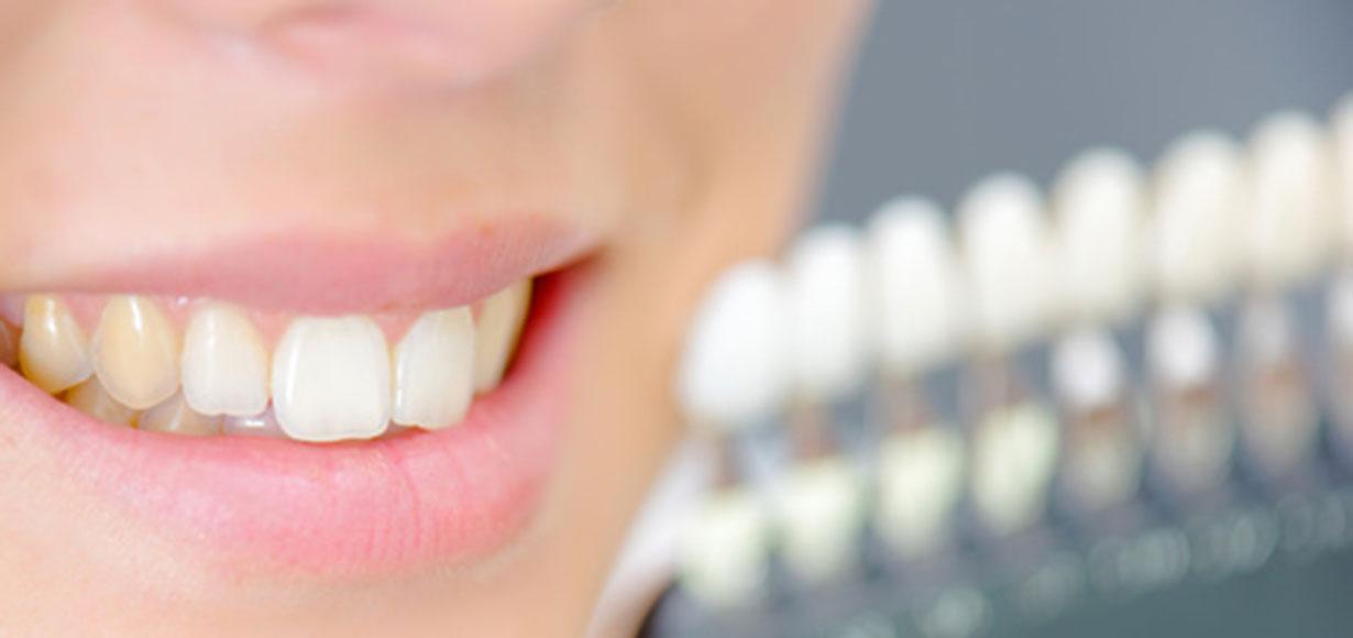 denti gialli-0