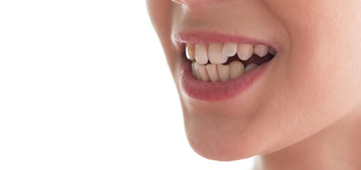 denti storti-1