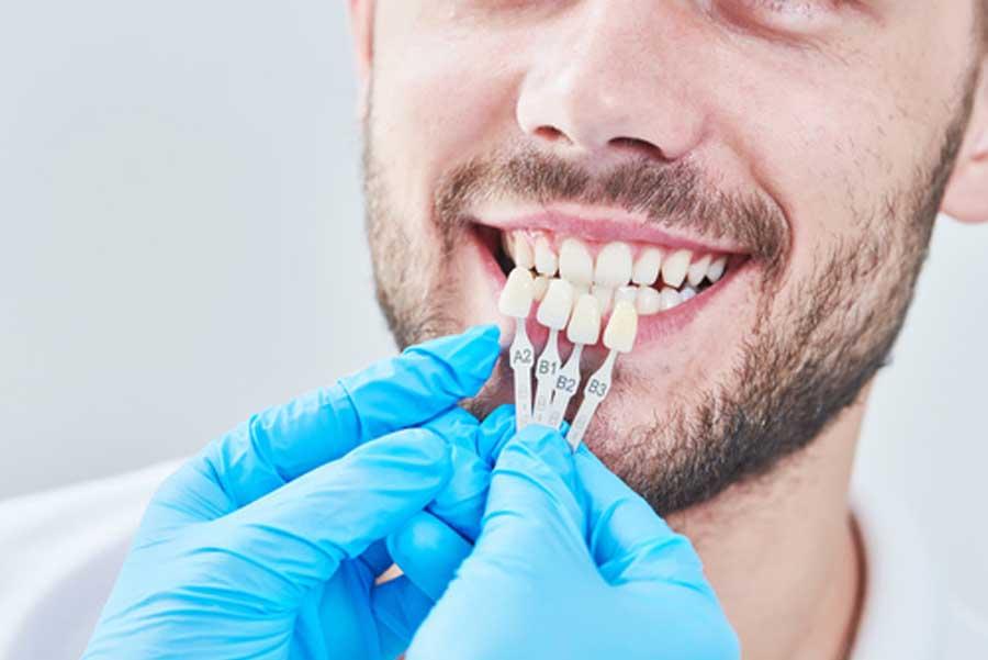 protesi dentale fissa
