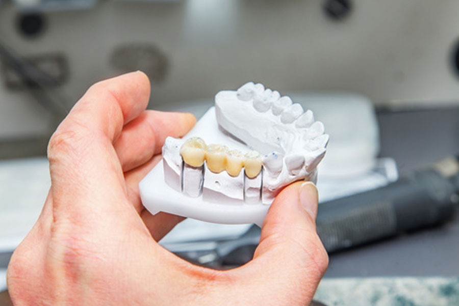 materiali protesi fisse