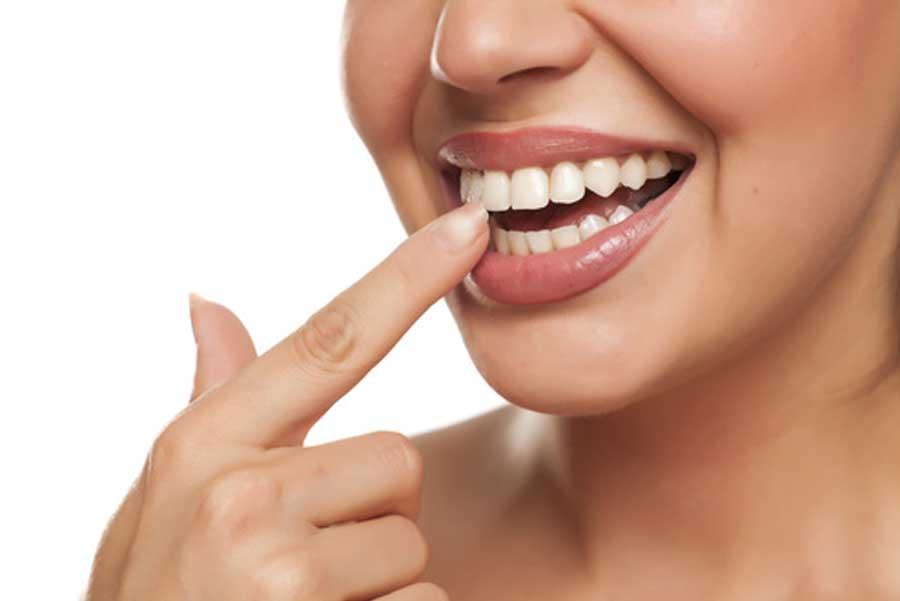 vantaggi intarsi denti