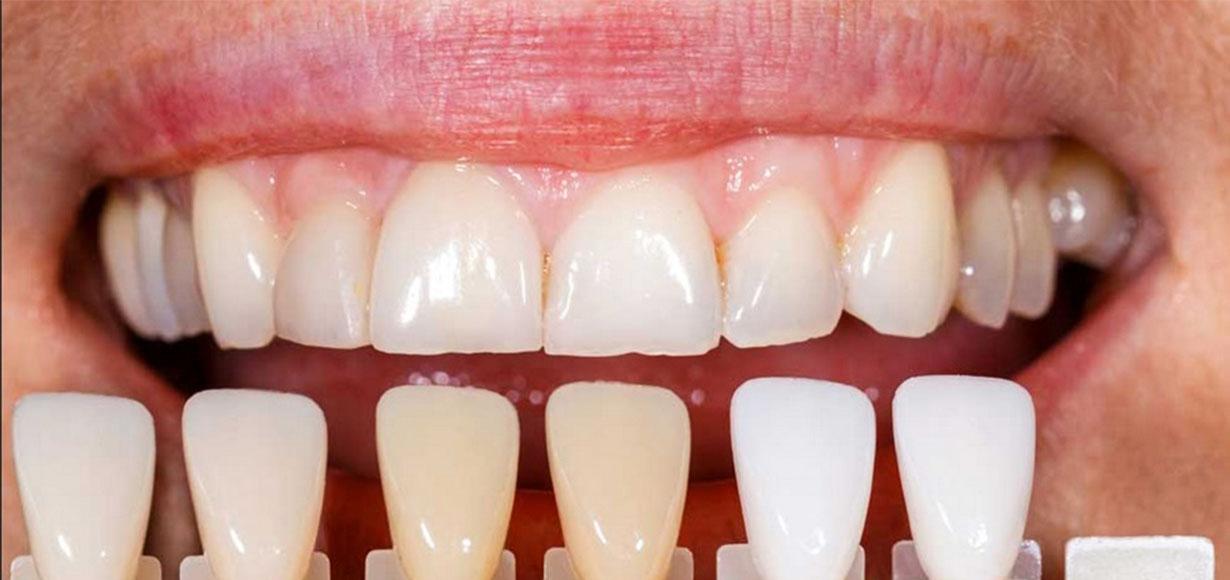 vantaggi faccette dentali