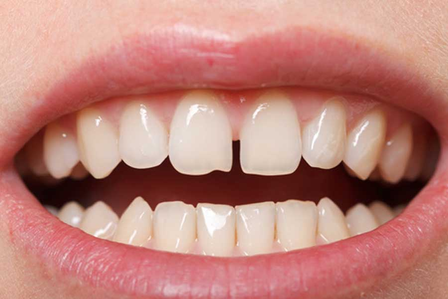 il diastema dentale