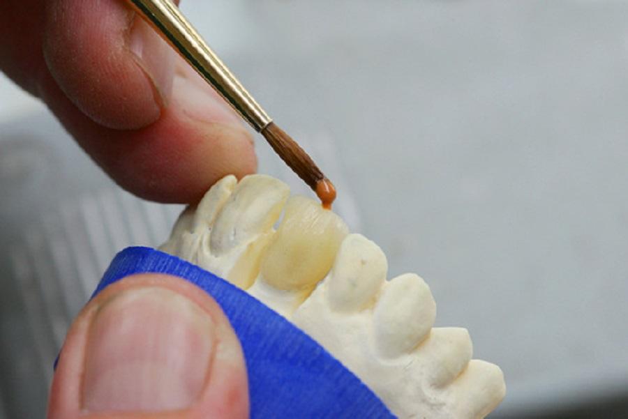 scegliere intarsi dentali
