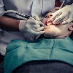 24-ore-senza-lavare-i-denti