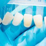 faccette-dentali-in-composito