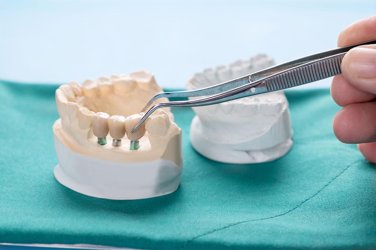 implantologia-in-assenza-di-osso