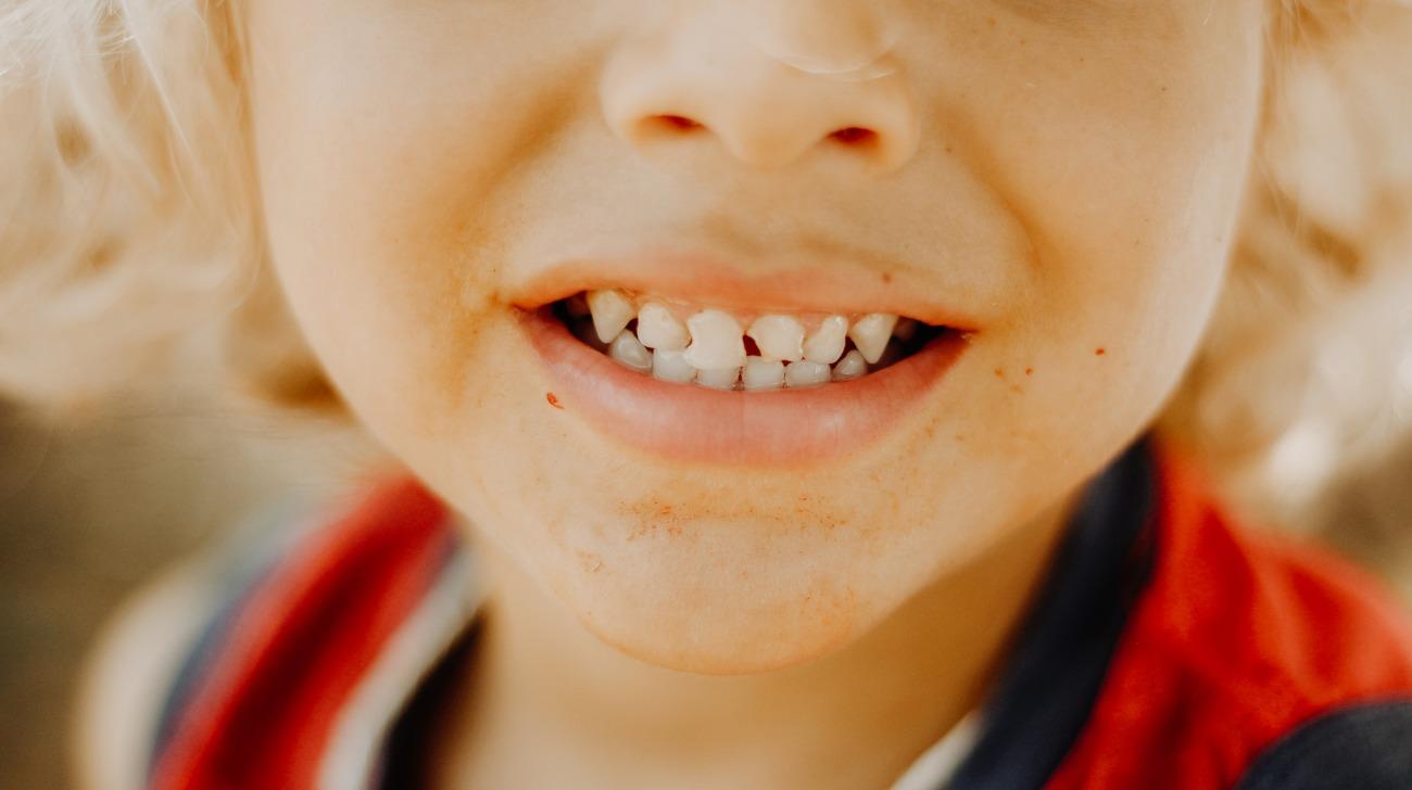 Trauma dentale nei bambini