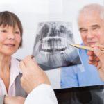 cos'è l'implantologia zigomatica