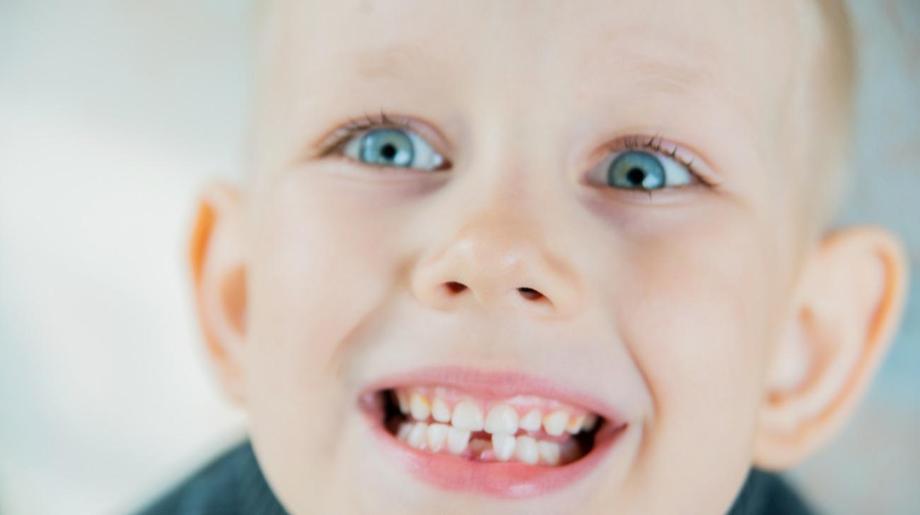 come proteggere i denti da latte
