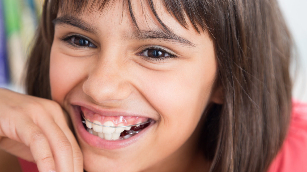 Denti-definitivi-gialli-cause